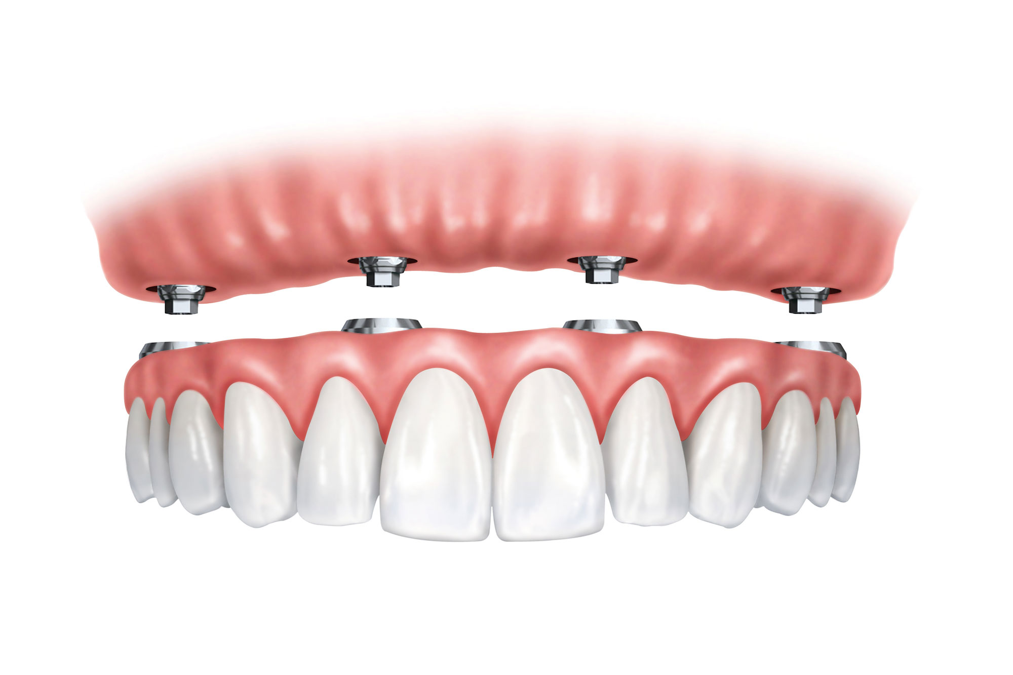 All-on-4-Dental-Implants