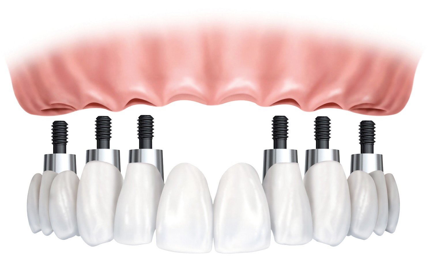 All-on-6-Dental-Implants